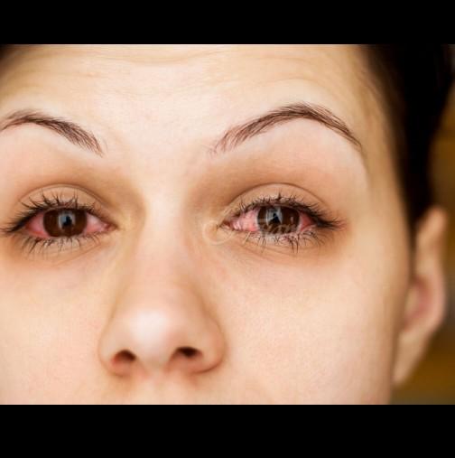 Развива се неусетно и изходът е фатален - 6 коварни симптома на глаукома, които всички трябва да познаваме: