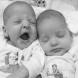 Тези близнаци се родиха преди 9 години, а днес се смятат за най-красивите в света-Ето как изглеждат!