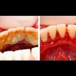 Този домашен разтвор премахва зъбен камък за 2 минути - мажеш, плакнеш и той сам пада: