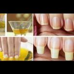 Справяне с чупливите нокти в домашни условия-Не изискват много средства, а са ефективни
