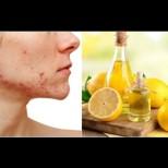 8 здравословни проблема, които лимоновият сок решава по-добре от всякакви хапчета: