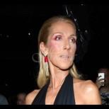Селин Дион вече не прилича на себе си - втрещи всички, когато ребрата ѝ се подадоха от роклята (Снимка):