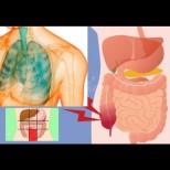 7-те ранни признаци на рак, които са най-лесни за пропускане!