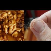 Чупливи нокти, безсъние, обилен косопад - причината е една, а решението - 1 лъжица на празен стомах: