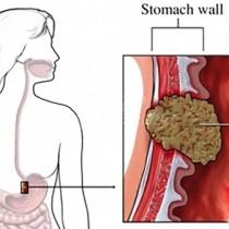 Учените установиха, кои хора са най-застрашени от рак на стомаха