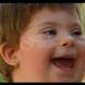 7-годишното момиченце със Синдром на Даун не успя да се справи