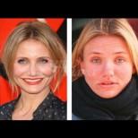 Без комплекси - 4 холивудски богини, които имат ужасна кожа и са О.К. с това (Снимки):