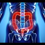 Ракът на дебелото черво се храни с три продукта, които редовно употребяваме