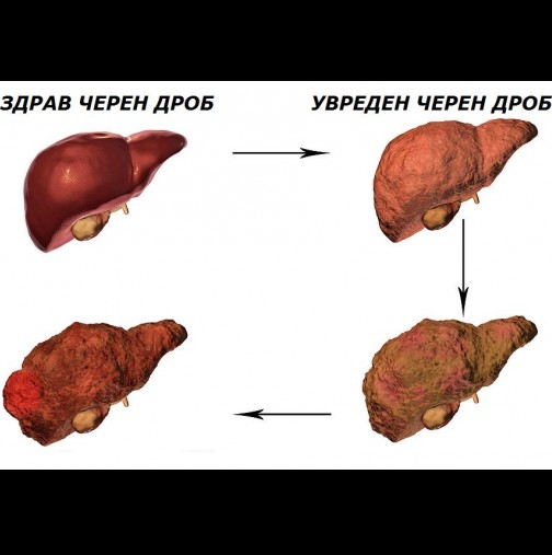 Всеки трети е с увреден черен дроб! Ето кои са първите симптоми за увреждане на черния дроб: