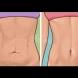 10 естествени средства, които се опъват увисналата кожа и връщат еластичността ѝ - по-добро от лифтинг: