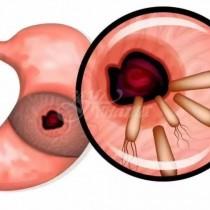 Отървах се от гастрит, който лекувах 5 години!-7 средства убиват бактерии, които причиняват рак, язви, гастрит, подуване на корема