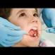 Любимият зеленчук на всички деца е най-големият убиец на зъбките: