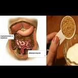 Чистачът на червата - измита токсините, отрови и шлаки с 2 съставки!