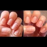 5 бързи домашни заздравителя за нокти с ефект като от салона - край на чупенето, беленето, жълтеенето: