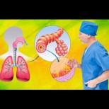 Суха кашлица и как да се лекува без лекарства
