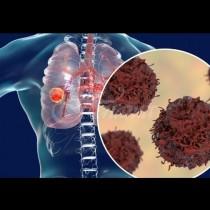 Колко време може да живеят пациенти с рак на белите дробове