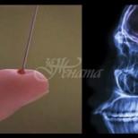 Как да спасиш човек с обикновена игла, когато го застрашава инсулт