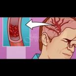 12 неочаквани симптома на смъртоносно ниски нива на магнезий в организма: