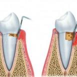 Признаци, че имате зъбен абсцес и как да го лекувате по естествен начин