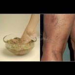 Как да си правим билкови вани при разширени вени и гъбички на краката - помагат и при ниско кръвно: