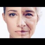 Как старее кожата ти - фино, деформационно или мускулно? Бърз тест и най-добрите методи за подмладяване според типа бръчки (Снимки):