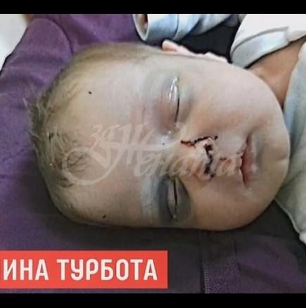 Бебе се бори за живота си, след като майка му го преби и излезе на среща