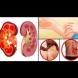 Не пренебрегвайте симптомите! Ранните признаци на бъбречно заболяване, които трябва да знаете!
