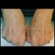 Домашна маска за премахване на старчески петна от ръцете