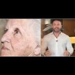 Тайната на дерматолозите - единственият безопасен начин да се отървете от кафявите петна по кожата:
