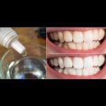 1 капка от вълшебната течност избелва зъбите с 2-3 тона, чисти зъбен камък и лош дъх! Лекува дори възпаленото гърло:
