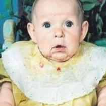 Хората я питаха-Бабо, защо носиш къса пола, а тя беше само на 24-Странната история на детето с бабешко лице
