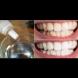 2-3 капки в пастата за зъби и сбогом жълти зъби, зъбен камък и лош дъх! Лекува дори възпаленото гърло: