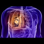 Ето по какво се разпознава рак на белия дроб