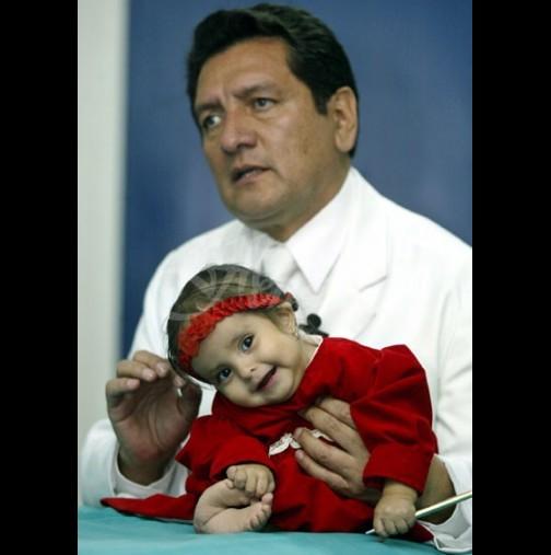Историята на Малката русалка от Перу просълзи милиони - тази малка кукличка се бори докрай, за да живее (Снимки):