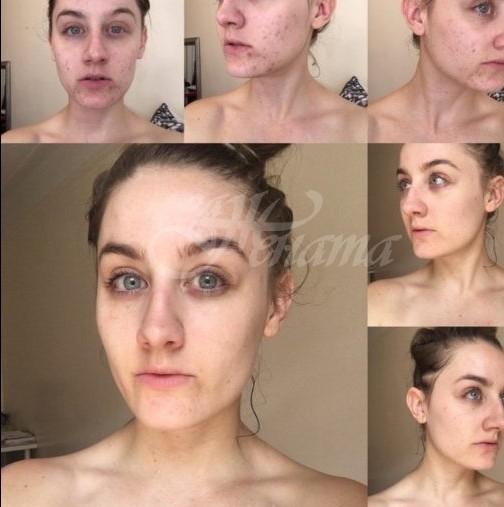 Жената, която не ми лицето си в продължение на една година изпита нещо фантастично!