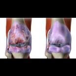 Трите главни причини за износването на ставите - причиняват болка и обездвижване: