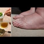 Най-мощното естествено средство за подуване на краката.