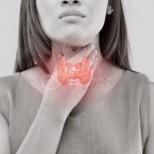 Ето как да отслабнете при проблеми с щитовидната жлеза-7 начина