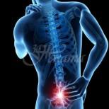 Как да облекчите прищипания нерв в лумбалната област (ишиас): 2 лесни начина да се отървете от болката