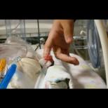 Помните ли миниатюрната Емилия, която се роди едва 226 грама и се побираше в човешка длан? Ето как изглежда днес (Снимки):