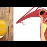 Довиждане холестерол! Напитка, която ще ви помогне да се отървете от холестеролни плаки!