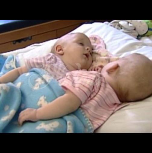 Краят на историята за раздялата на сиамските близнаци-Ето какво се случи 13 години по-късно!