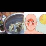 Как да излекуваме синузита с дафинов лист - ефикасни народни рецепти за скоростно облекчение на симптомите: