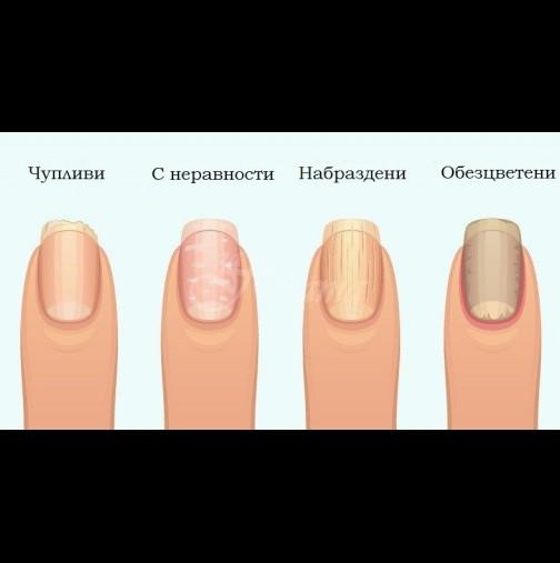 Ноктите ни предупреждават първи - 8 промени в ноктите, които сочат сериозни здравословни проблеми: