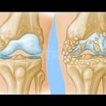 Причини за остеоартрит на колянната става и справяне с проблема