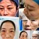Ето как изглеждат лицата на медици, които борят с коронавируса в Китай в продължение на денонощия без да почиват