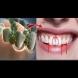 Домашна вода за уста - отстранява неприятната миризма от устата за 5 минути, избелва зъбите и дезинфикцира: