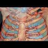 Показаха видео как изглеждат белите дробове на човек болен от коронавирус