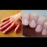 Тези видими промени в ръцете са сигнал за сериозно заболяване - не ги пренебрегвайте: