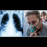 Ето необичайните симптоми на бял дроб, който изнемогва и как да го изчистим с домашни средства: